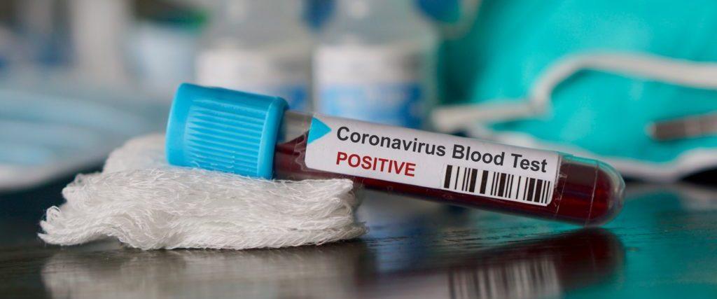 Coronavirus Manilva