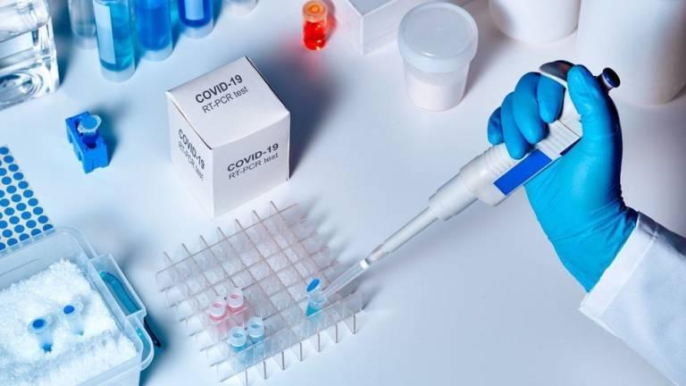Cuanto tardan los resultados PCR